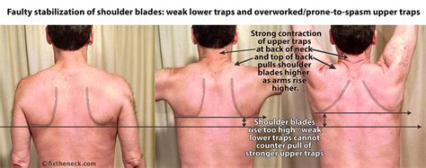 constant muscle spasms neck and shoulders picture 4