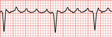 abnormal ekg and high blood pressure picture 18