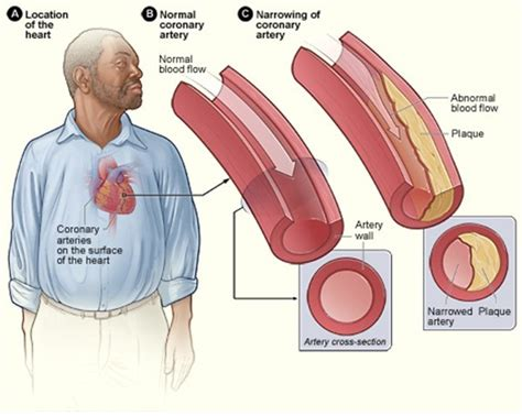 What is the two cholesterol picture 7