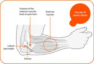 joint pain in the forearm picture 10
