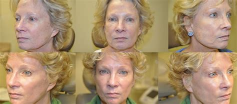 can a co2 total fx full face laser picture 13