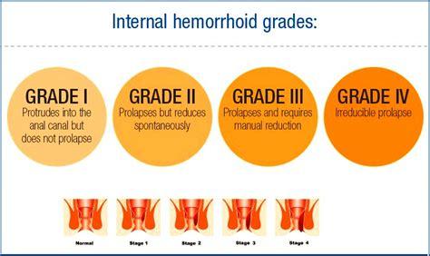 strangulated hemorrhoid picture 10