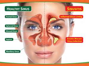 what herbal product help rid the sinus of picture 1
