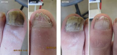 pinpoint laser for nail fungus in seattle picture 9