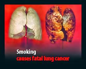 herbs for lung cancer picture 3