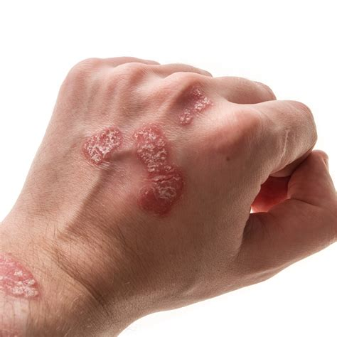 red spots on skin colon cleanse picture 15