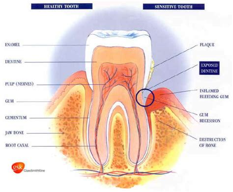 what to do for sensitive teeth picture 11