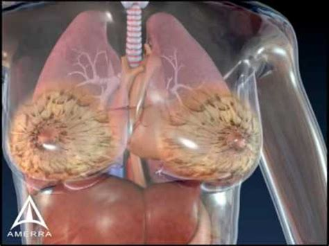 3d breast cancer animation picture 2