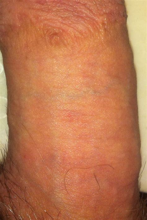 blisters on my penis picture 11