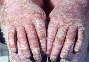 buni skin disease medication picture 6