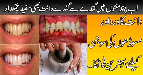 clove oil to whiten teeth picture 14