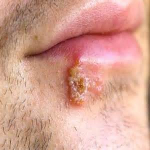 symtoms of herpes picture 6