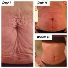 weight loss and stomach brushing picture 14