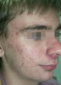 scar treatment for cystic acne picture 1