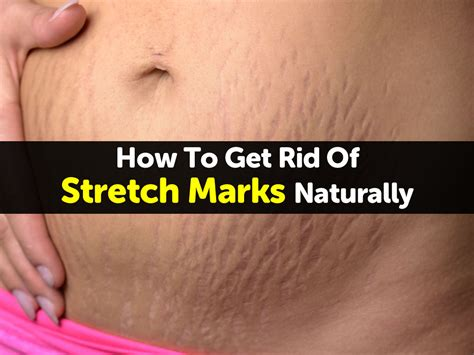how can you get rid of stretch marks picture 9