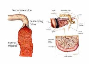 colon problems and symptoms picture 5