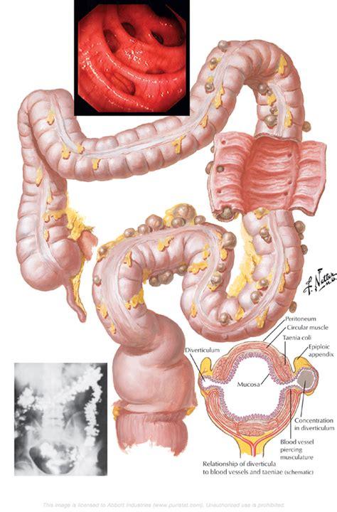 colon diverticulosis picture 15