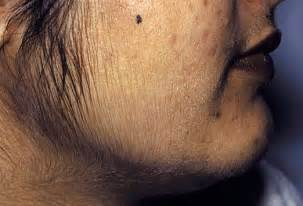 Endocrine acne disorders picture 1