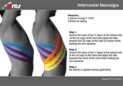 intercostsal muscle strain picture 5