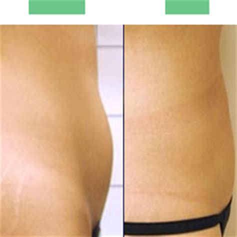 laser hair removal new york picture 6