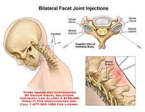 cervical facet joint procedure picture 3