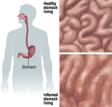 Inflamed stomach due cholesterol medication picture 1
