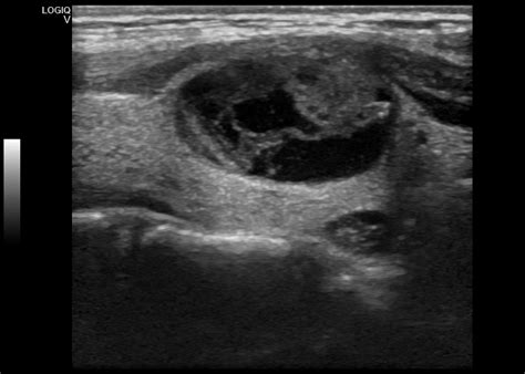 colloid cyst thyroid ultrasound picture 14