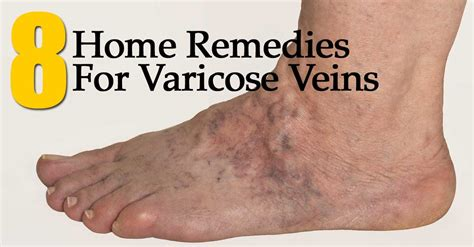 what herbs are good to open the veins picture 11