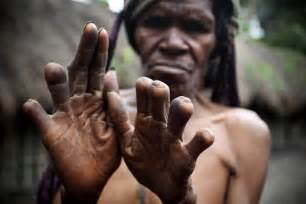 tribes with the largest penis in the world picture 13
