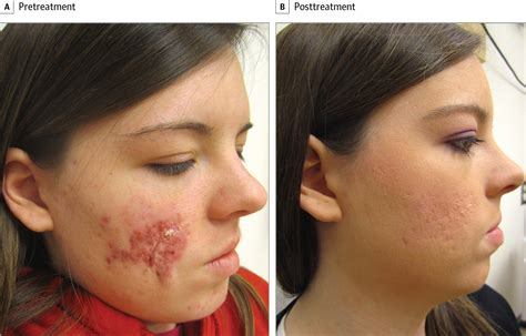 how fix skin after acne antibiotics picture 8