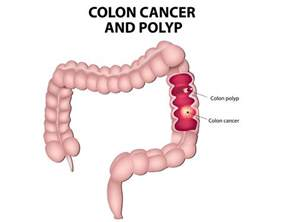 colon cancer in black women picture 6