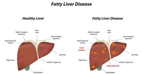 reasons for having a fatty liver picture 3