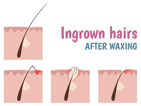 what's good for ingrown hair after waxing picture 1