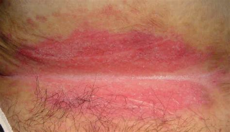 bright red blood after yeast infection picture 1