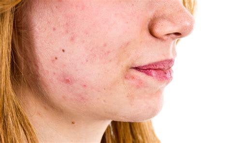 acne vulgaris pictures picture 5