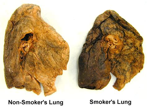 affects of cigar smoke on lung tissue picture 5
