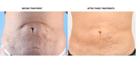 dermapen stretch marks before and after picture 14