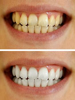 fort worth teeth whitening picture 2