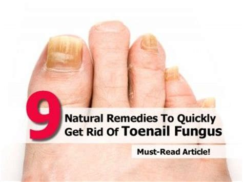 what is the quickest way to get rid of toenail fungus picture 8