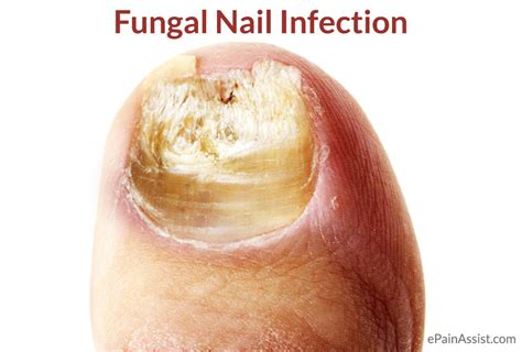 nail fungus infection picture 7