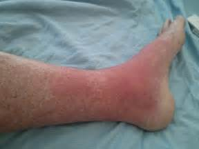 hives burning in side swelling picture 6