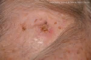 basal cell skin cancer metastasis picture 6