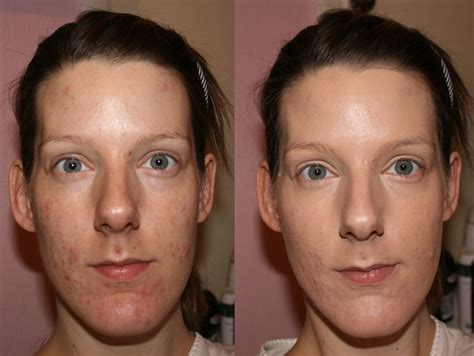 antiaging before after picture 13