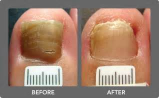 toe nail fungal treatment lasar picture 1