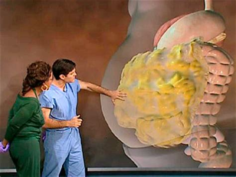 2013 surgery burn fat inside your stomach picture 1