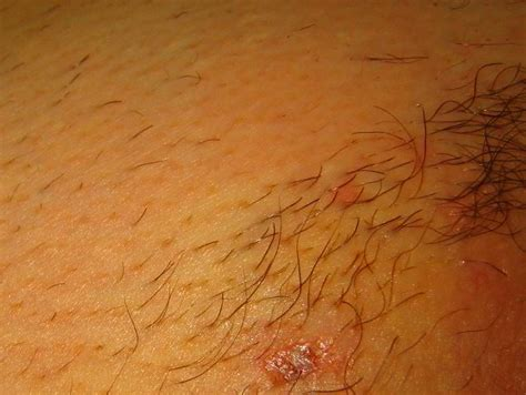 laser hair removal pubic area picture 9