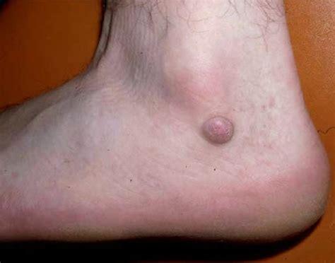 dermatologist skin tumors picture 10