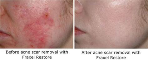 delaware acne and scar treatment md picture 9