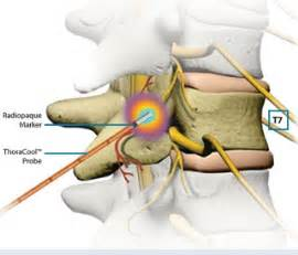 nerve pain relief picture 9