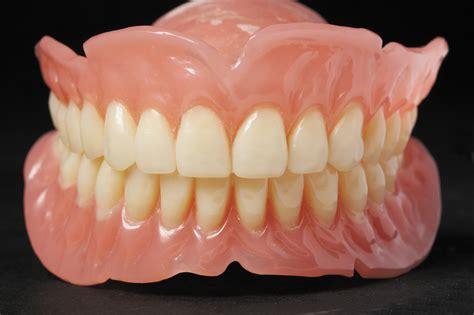 Lip implant picture 7